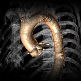 تصویر CT از طراحی TAVR