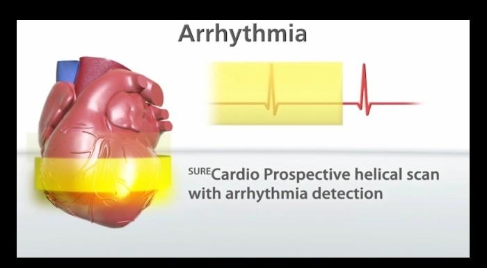 معاینه تشخیصی تکرارپذیر و ایمنتر با همه اسکنهای قلبی