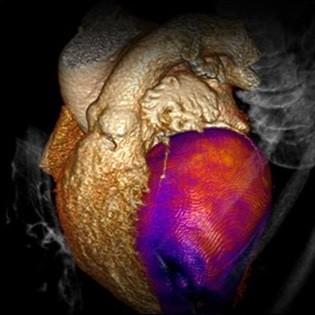 تصویر CT از خون رسانی ماهیچه قلبی برای fX