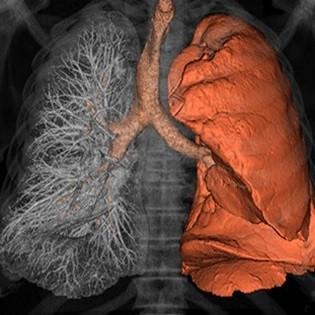 تصویر CT از تحلیل چگالی ریه