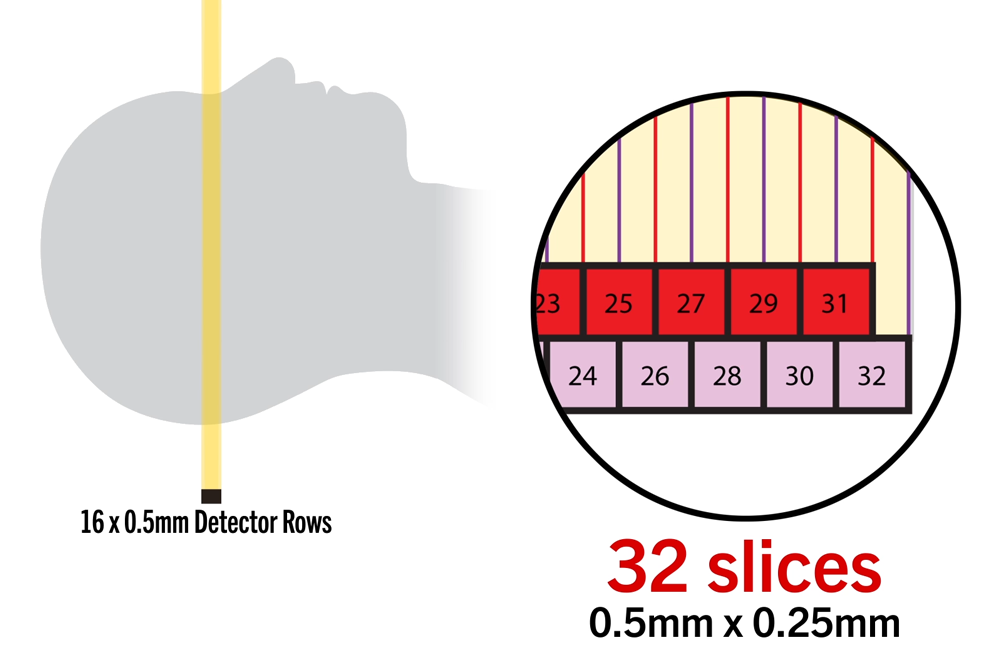 Double Slice-coneXact