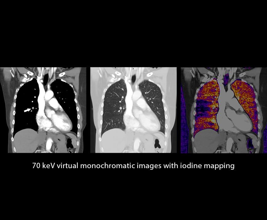 تصویربرداری طیفی با فناوری یادگیری عمیق