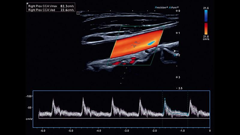 ارگونومی چشمگیر و نتایج قلبی عروقی با کیفیت و اعتبار بالا
