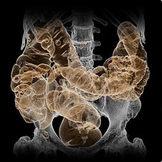 تصویر CT از تحلیل روده بزرگ