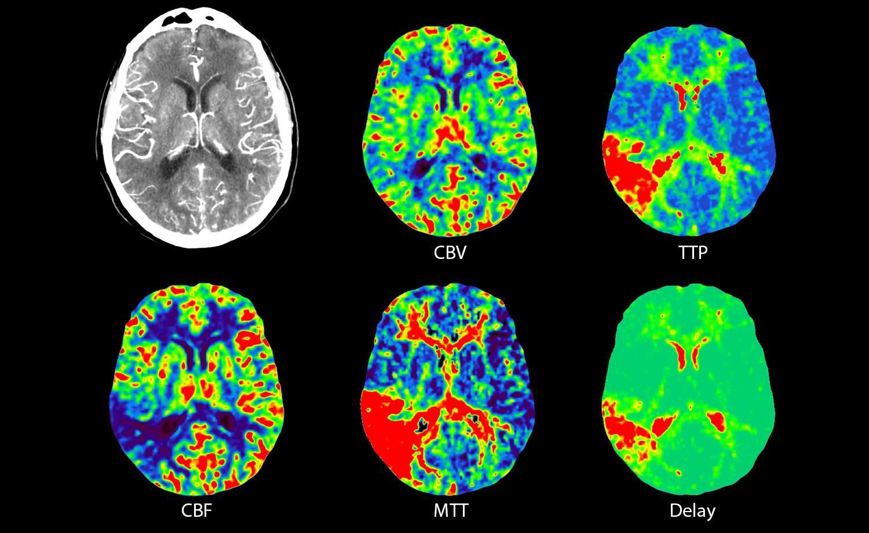 سیتی اسکن مغز و اعصاب