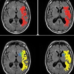 تصاویر  Olea Medica  ،Olea MR ،Olea MR LC
