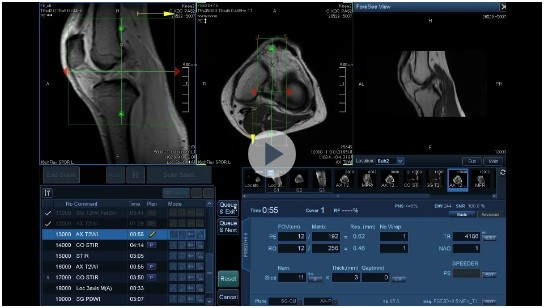 بازتعریف کارآیی MRI