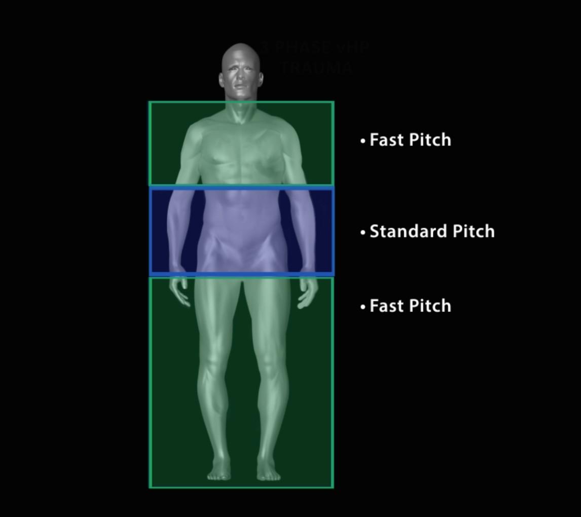 گام (pitch) هلیکال متغیر