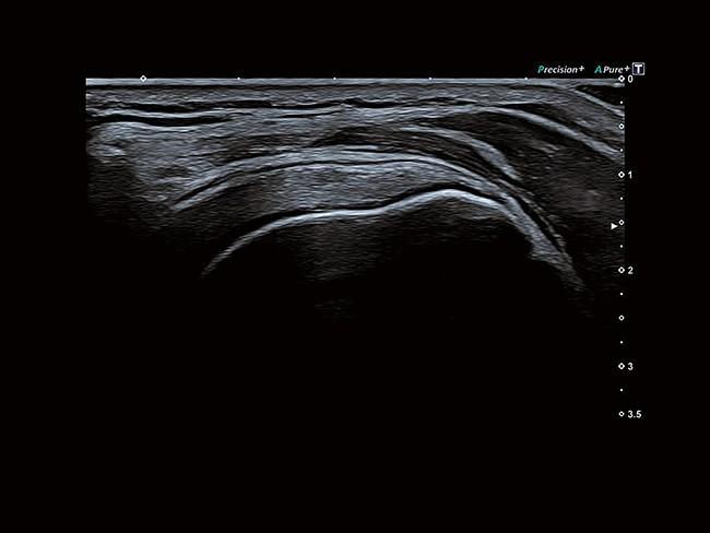 Differential Tissue Harmonics