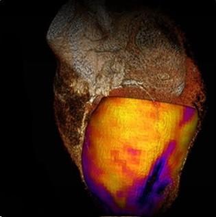 تصویر CT از تحلیل ماهیچه قلبی