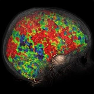 تصویر چهار بعدی CT از تحلیل مغزی برای fX