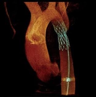 تصویر سه بعدی آنژیوگرافی XA