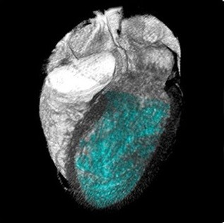 تصویر CT از تحلیل عملکردی قلب