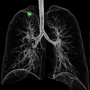 تصویر CT از تحلیل ریه